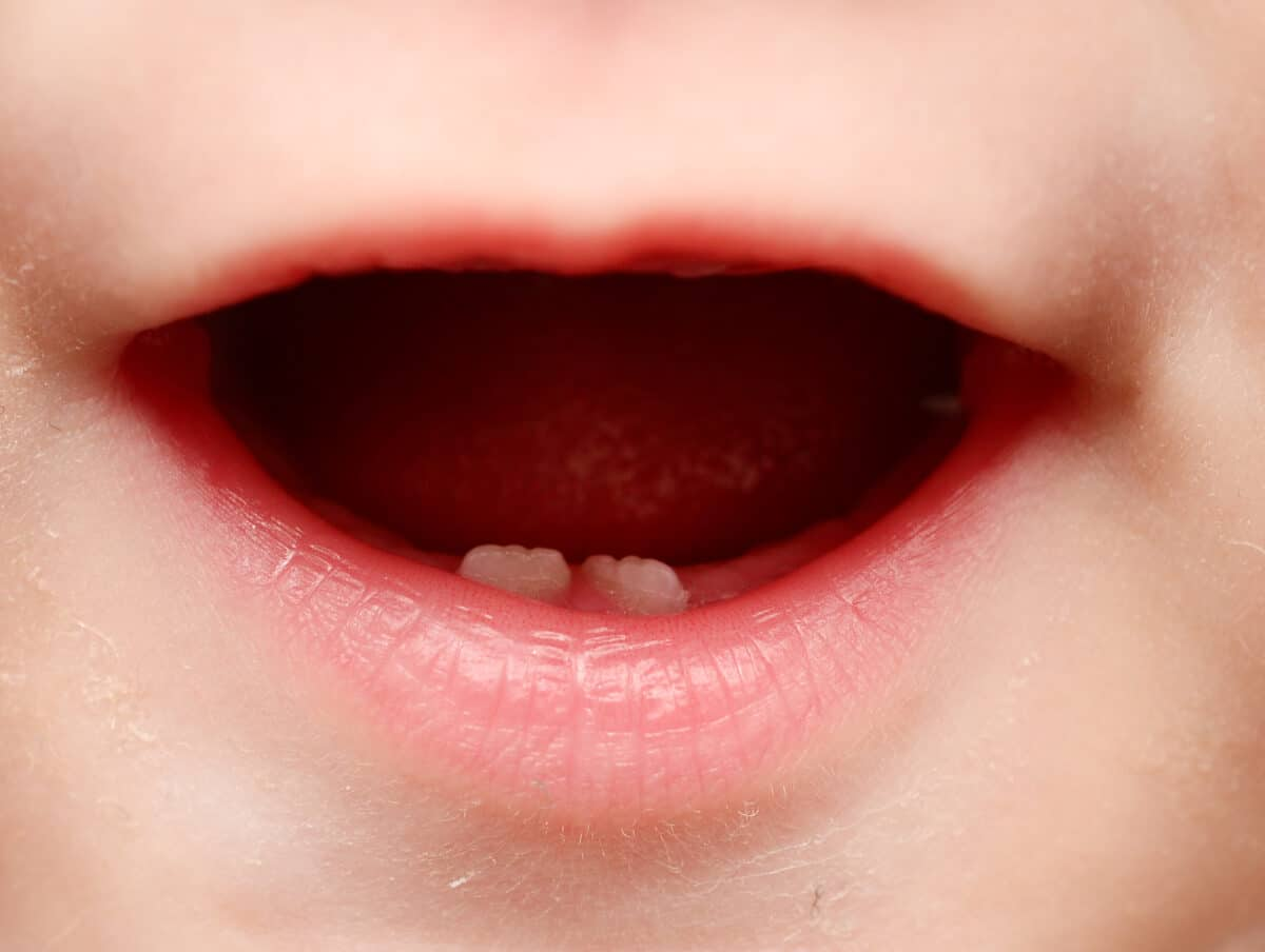 baby-mouth-with-two-teeth-1200x904.jpg